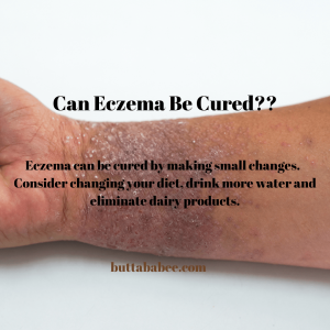 Can eczema be cured?