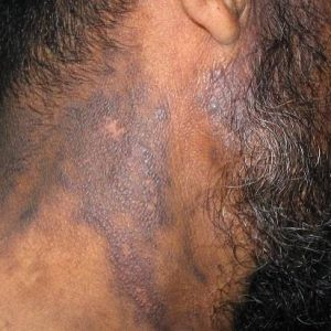 what is eczema caused by?