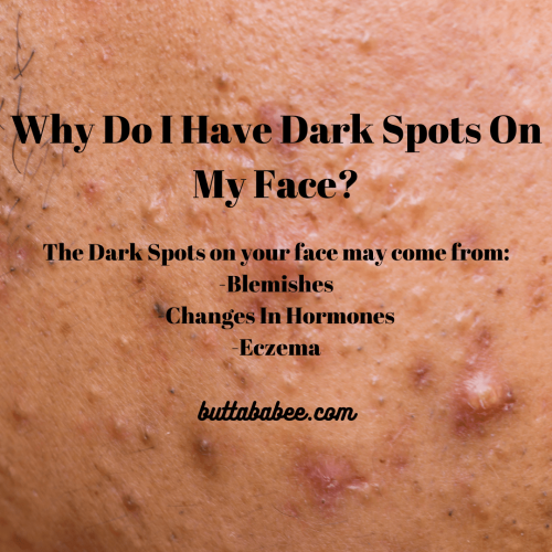 Why Do I have Dark Spots On My Face?