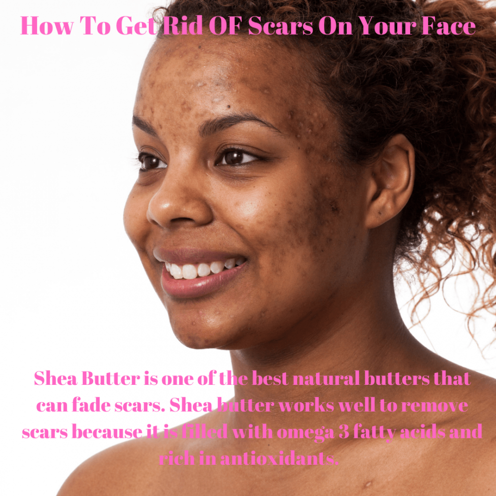 How to get rid of scars on your face