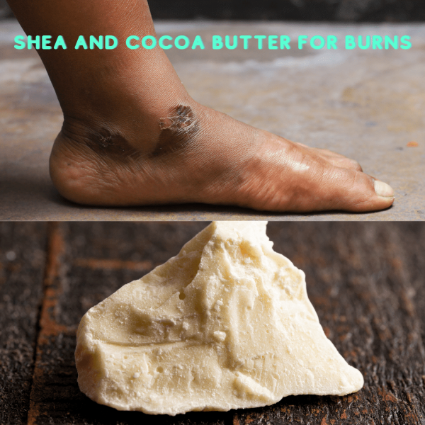 Shea and cocoa butter for burns