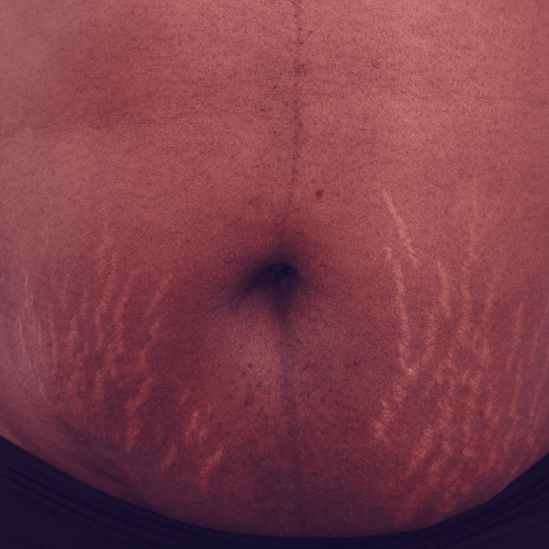 what can i use on stretch marks